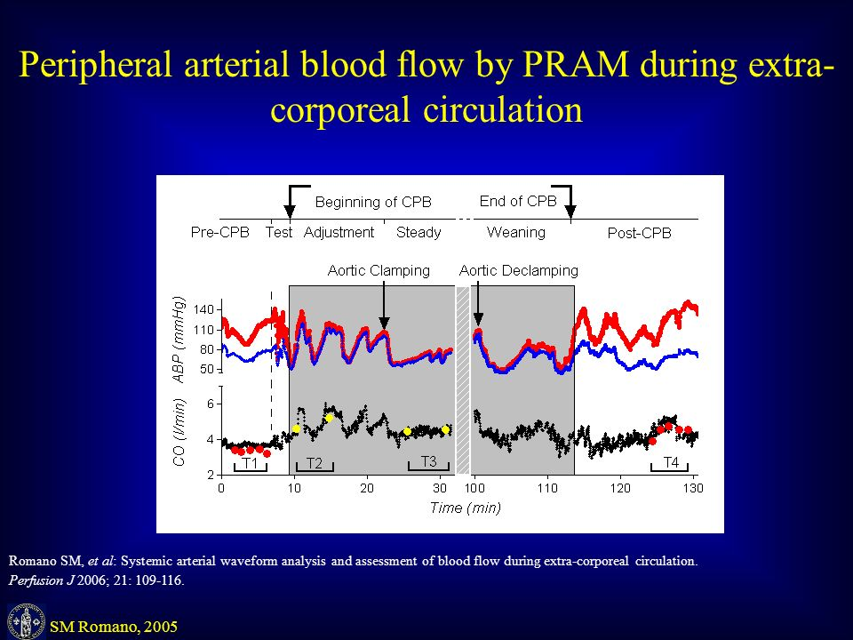 Peripheral arterial blood flow by PRAM during extra- corporeal circulation HR SV (l) Romano SM, et al: Systemic arterial waveform analysis and assessment of blood flow during extra-corporeal circulation.