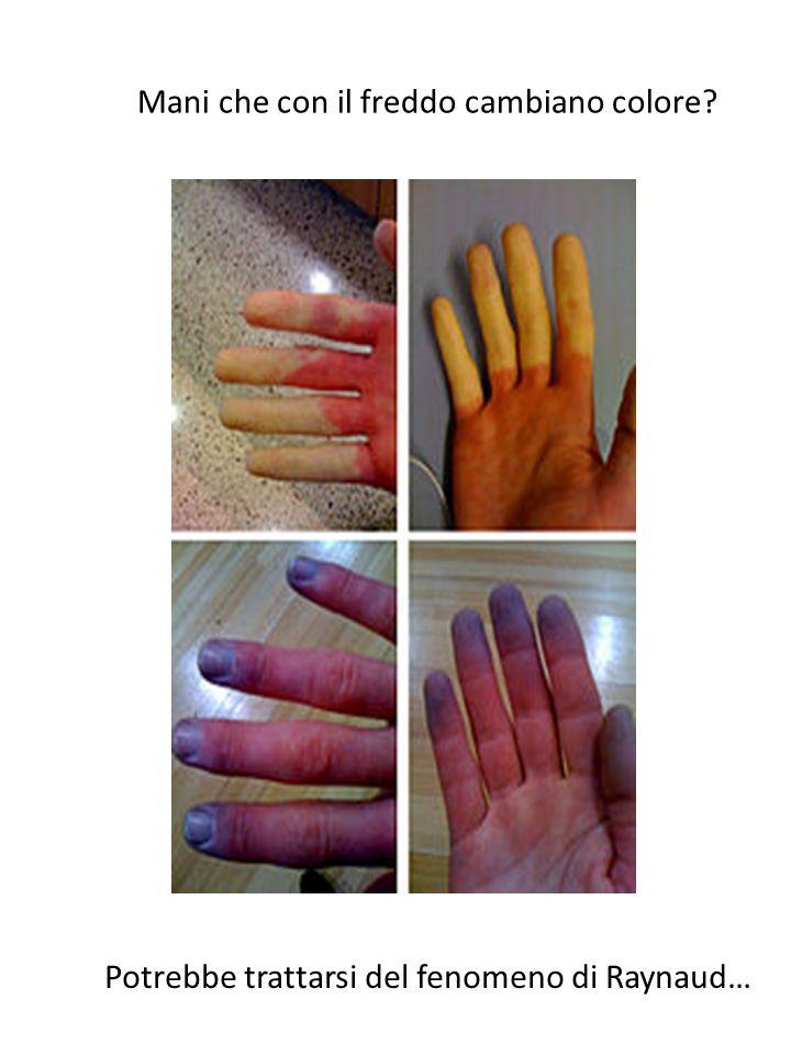 Mani che con il freddo cambiano colore? Potrebbe trattarsi del fenomeno di Raynaud…