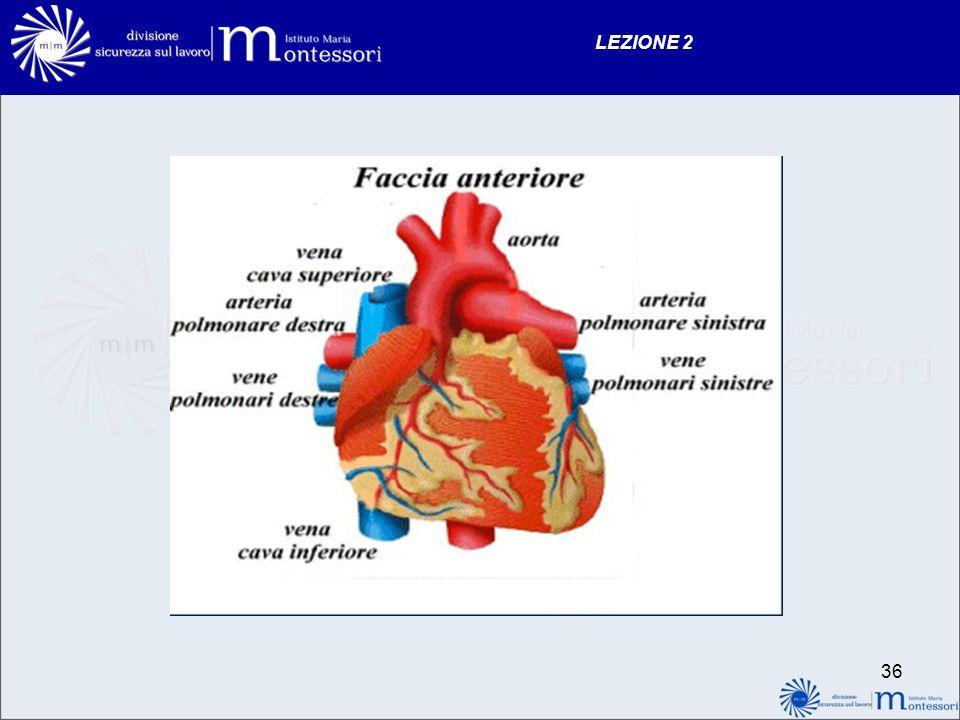 35 LEZIONE 2 Caratteristiche del dolore toracico cardiaco sede del dolore: retrosternale, stomaco irradiazione: gola, mandibola, spalla sinistra, braccio sinistro, mano sinistra accompagnato da: sudorazione profusa, nausea, vomito, angoscia, agitazione