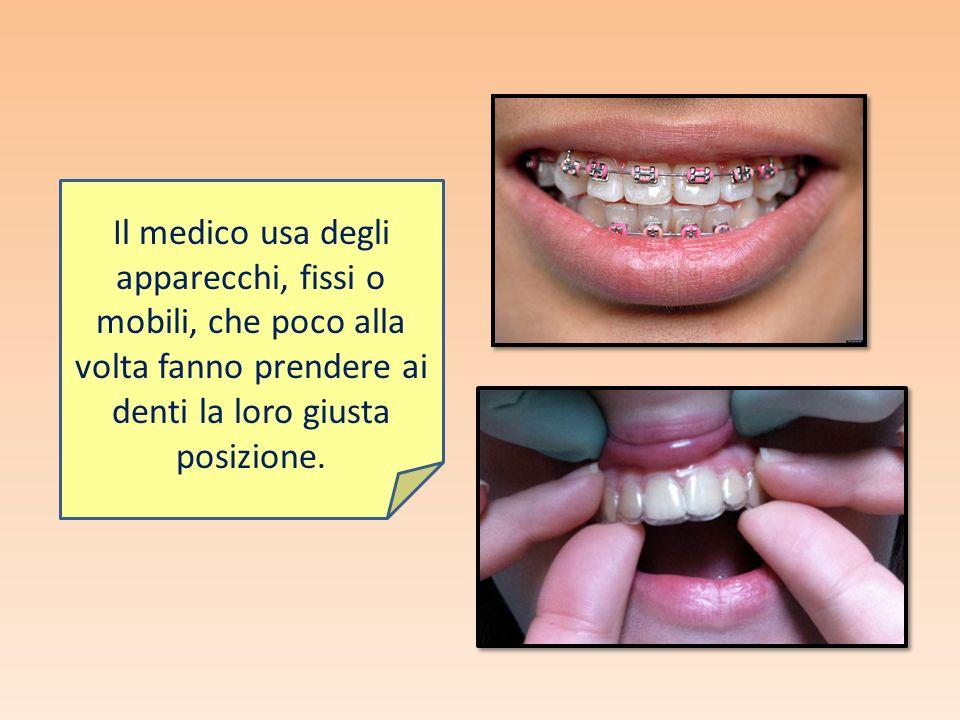 Il medico usa degli apparecchi, fissi o mobili, che poco alla volta fanno prendere ai denti la loro giusta posizione.