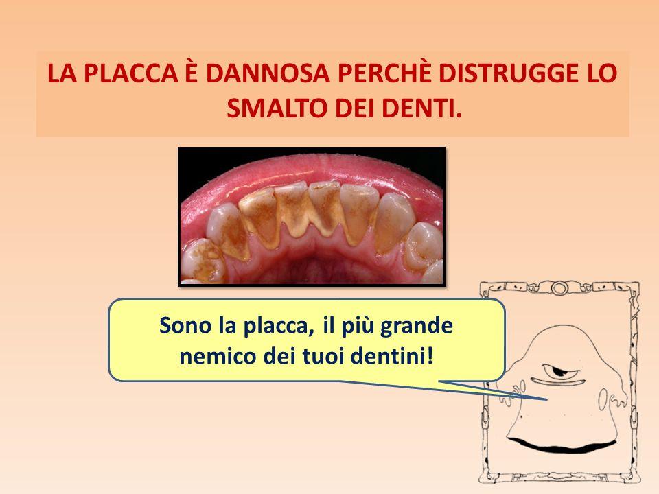 LA PLACCA È DANNOSA PERCHÈ DISTRUGGE LO SMALTO DEI DENTI. Sono la placca, il più grande nemico dei tuoi dentini!