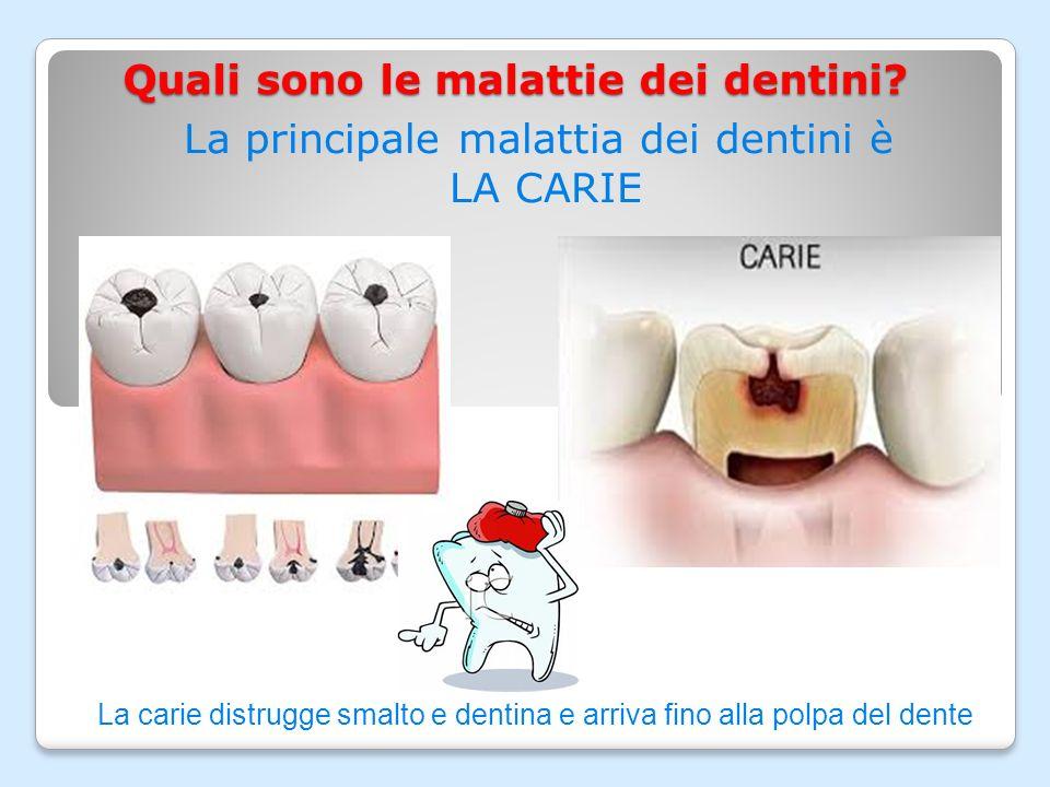 Quali sono le malattie dei dentini.