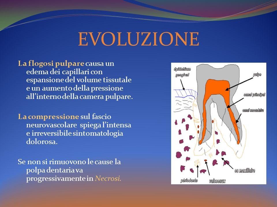 La flogosi pulpare causa un edema dei capillari con espansione del volume tissutale e un aumento della pressione allinterno della camera pulpare. La c