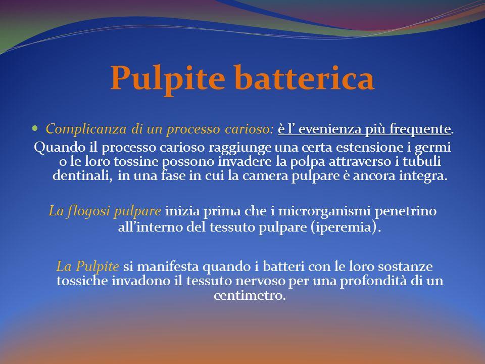 Pulpite batterica è l evenienza più frequente Complicanza di un processo carioso: è l evenienza più frequente.