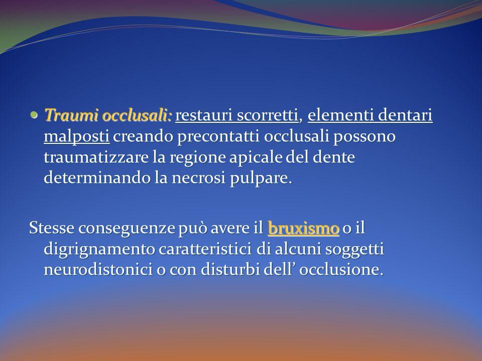 Traumi occlusali: restauri scorretti, elementi dentari malposti creando precontatti occlusali possono traumatizzare la regione apicale del dente determinando la necrosi pulpare.