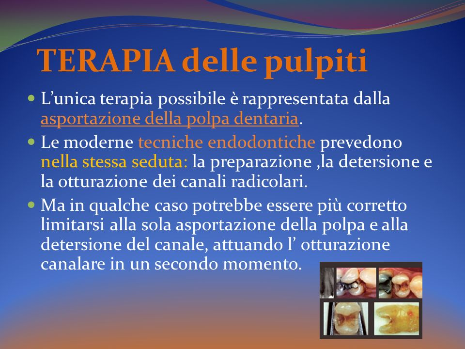 TERAPIA delle pulpiti Lunica terapia possibile è rappresentata dalla asportazione della polpa dentaria. Le moderne tecniche endodontiche prevedono nel