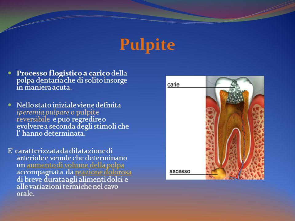 Pulpite Processo flogistico a carico della polpa dentaria che di solito insorge in maniera acuta. Nello stato iniziale viene definita iperemia pulpare