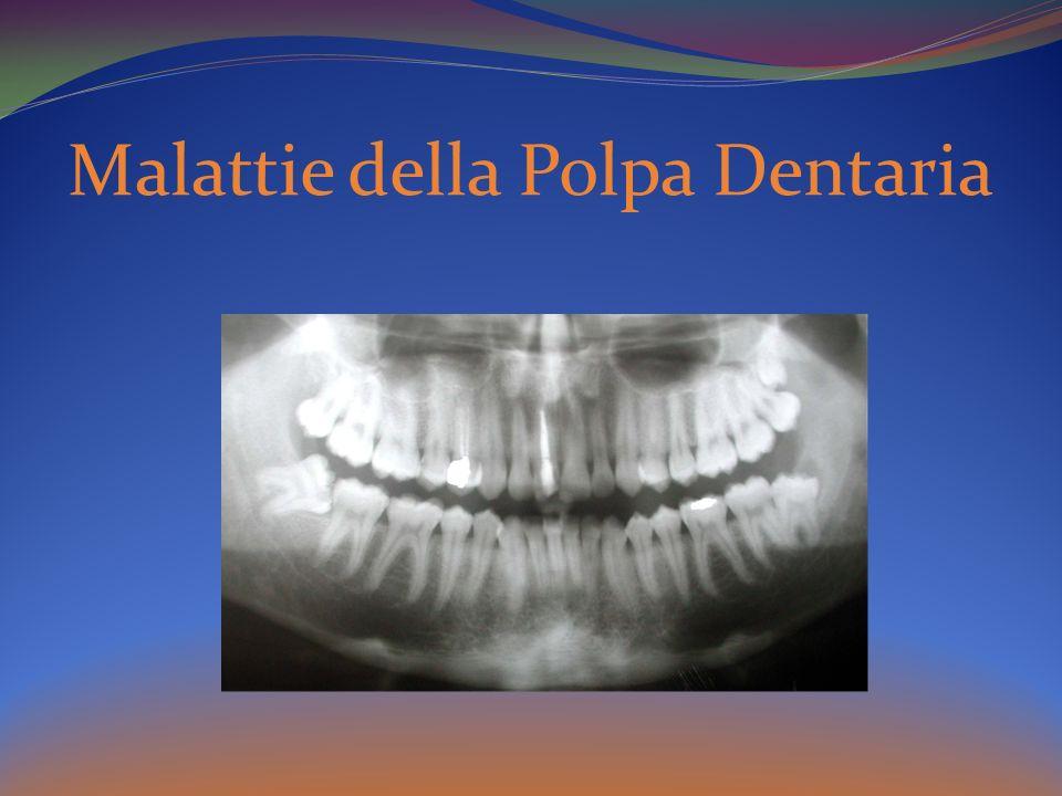 Malattie della Polpa Dentaria