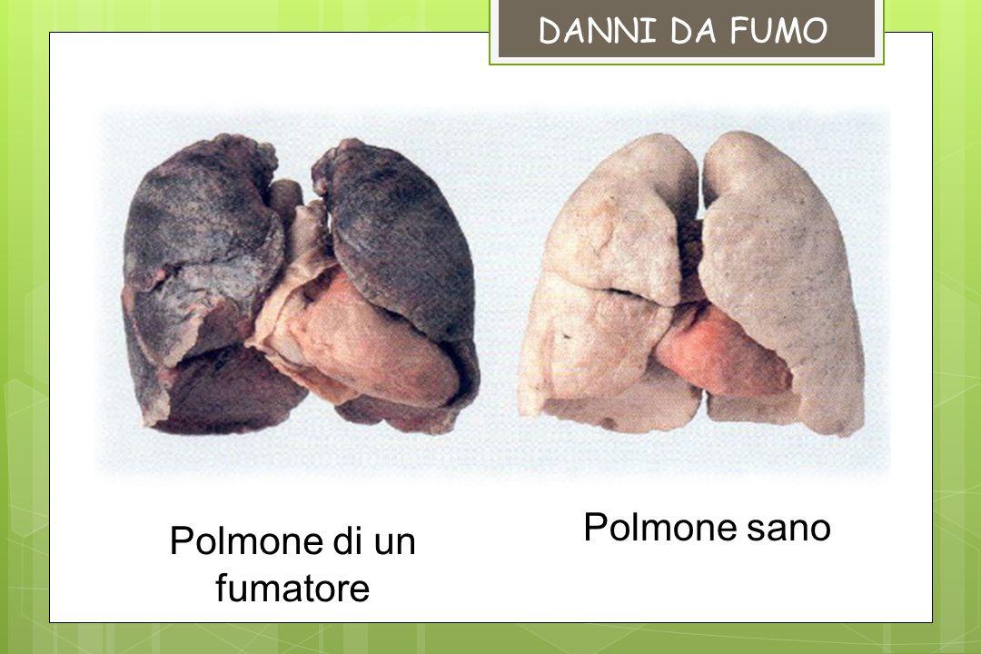 Polmone sano Polmone di un fumatore DANNI DA FUMO
