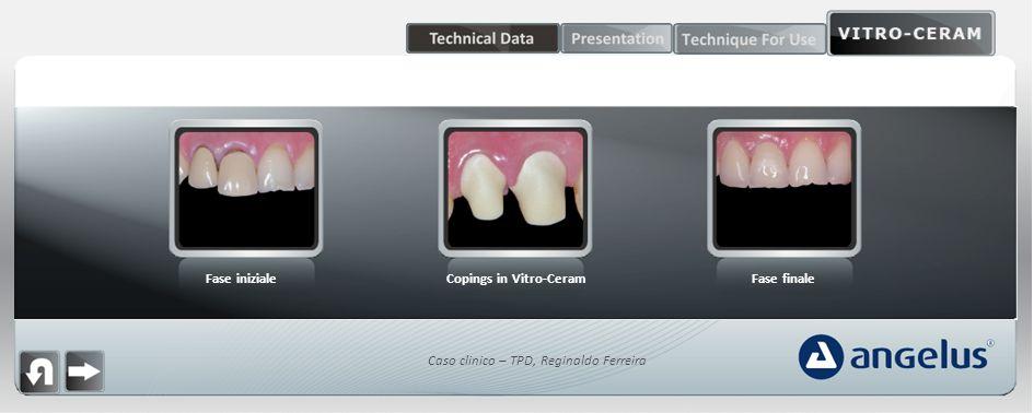 Fase inizialeCopings in Vitro-CeramFase finale Caso clinico – TPD, Reginaldo Ferreira