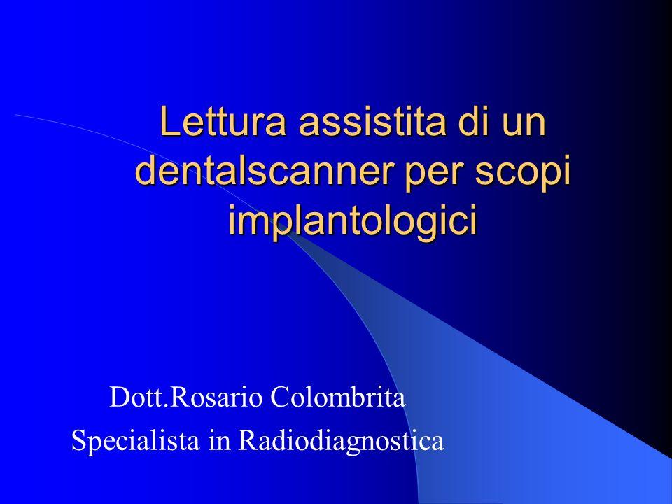Lettura assistita di un dentalscanner per scopi implantologici Dott.Rosario Colombrita Specialista in Radiodiagnostica