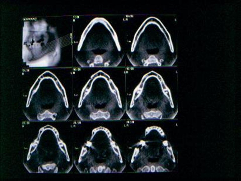 panorex La ricostruzione panorex è quella più familiare allodontoiatra in quanto ripropone limmagine dellortopantomografia.