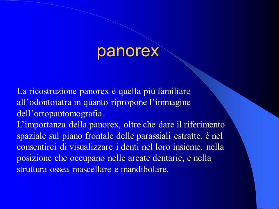panorex La ricostruzione panorex è quella più familiare allodontoiatra in quanto ripropone limmagine dellortopantomografia. Limportanza della panorex,