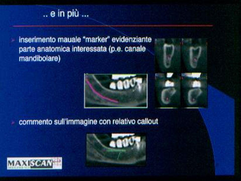 parassiali Le parassiali rappresentano la vera innovazione dellesame tac dentale.