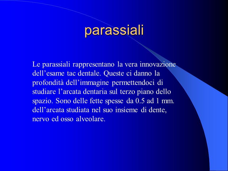 parassiali Le parassiali rappresentano la vera innovazione dellesame tac dentale. Queste ci danno la profondità dellimmagine permettendoci di studiare