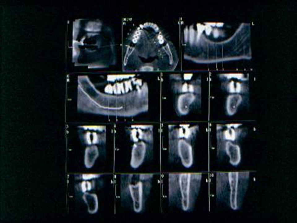coronali Talvolta si rende necessario eseguire delle ricostruzioni coronali per lo studio di particolari patologie come le disodontiasi palatine, lo studio delle articolazioni temporo-mandibolari o quello dei seni paranasali.
