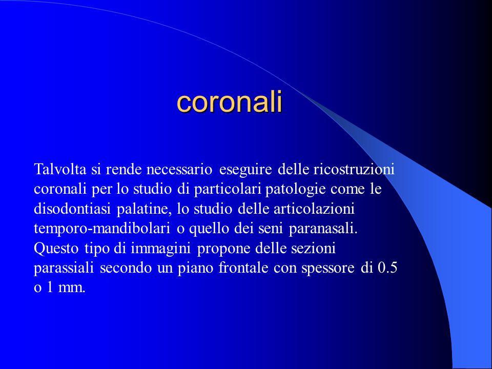 coronali Talvolta si rende necessario eseguire delle ricostruzioni coronali per lo studio di particolari patologie come le disodontiasi palatine, lo s