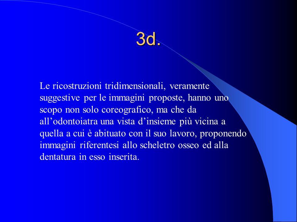 3d. Le ricostruzioni tridimensionali, veramente suggestive per le immagini proposte, hanno uno scopo non solo coreografico, ma che da allodontoiatra u
