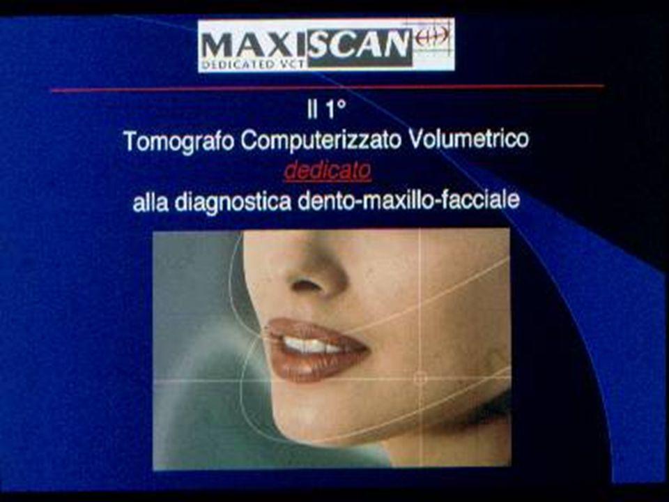 Stato dellarte Inizialmente si approcciò lo studio delle arcate dentarie Mediante la tomografia assiale computerizzata che utilizzava programmi di ricostruzione dedicati chiamati dentalscanner.