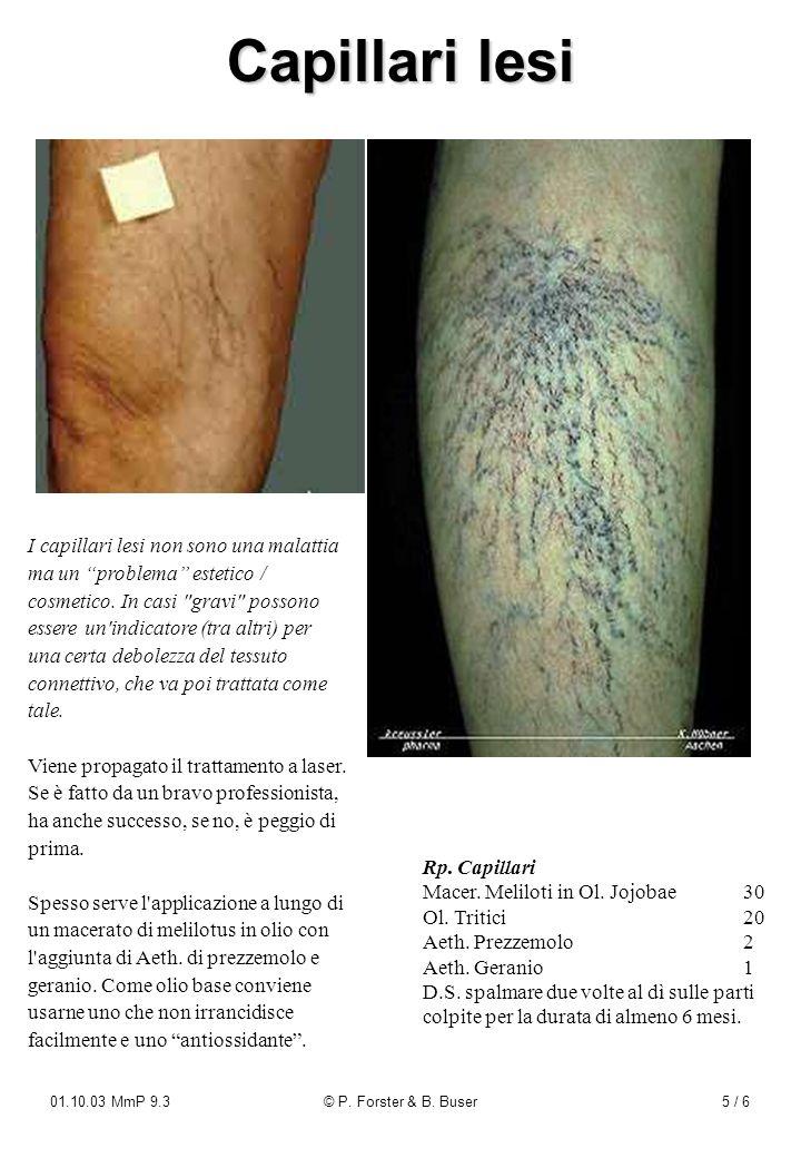 01.10.03 MmP 9.3© P. Forster & B. Buser5 / 6 Capillari lesi I capillari lesi non sono una malattia ma un problema estetico / cosmetico. In casi