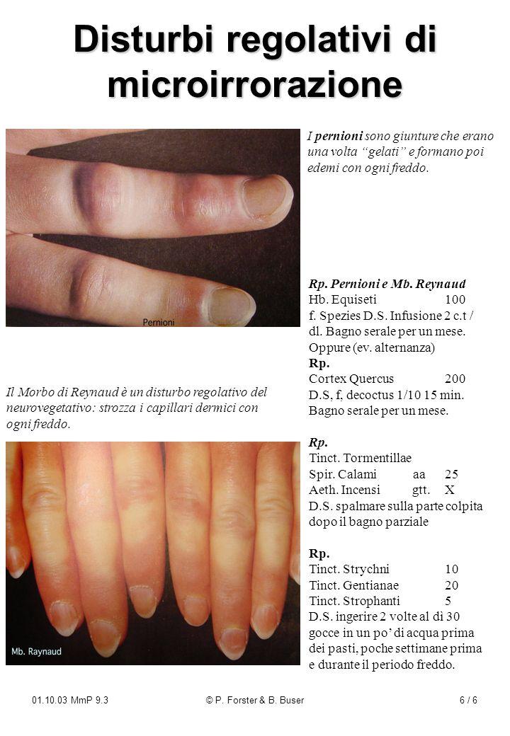 01.10.03 MmP 9.3© P. Forster & B. Buser6 / 6 Disturbi regolativi di microirrorazione Rp. Pernioni e Mb. Reynaud Hb. Equiseti100 f. Spezies D.S. Infusi