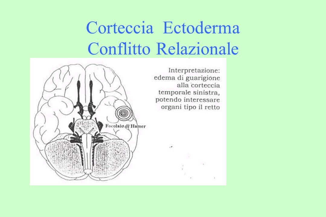 Corteccia Ectoderma Ad uno choc, la corteccia risponderà nei confronti dei tessuti, organi ed epiteli ectodermici in: - simpaticotonia: ulcerazioni, necrosi (cancro ulcerativo dellepitelio pavimentoso, carenze funzionali, diabete, paresi motorie e sensorie) + vagotonia: epitelioma, polipi (alle corde vocali ed alla laringe; gli altri sono endoderma), infarto, epilessia, cicatrizzazione, espulsione, tumefazione, paralisi facciale (le paralisi sono in conflitto attivo).