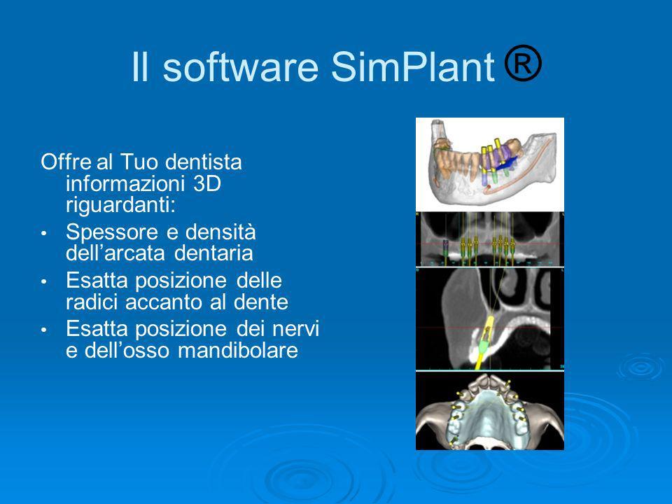 Il software SimPlant ® Offre al Tuo dentista informazioni 3D riguardanti: Spessore e densità dellarcata dentaria Esatta posizione delle radici accanto