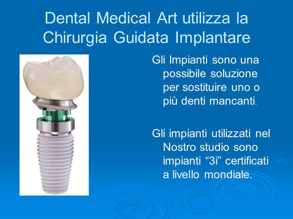 Dental Medical Art utilizza la Chirurgia Guidata Implantare Gli Impianti sono una possibile soluzione per sostituire uno o più denti mancanti. Gli imp