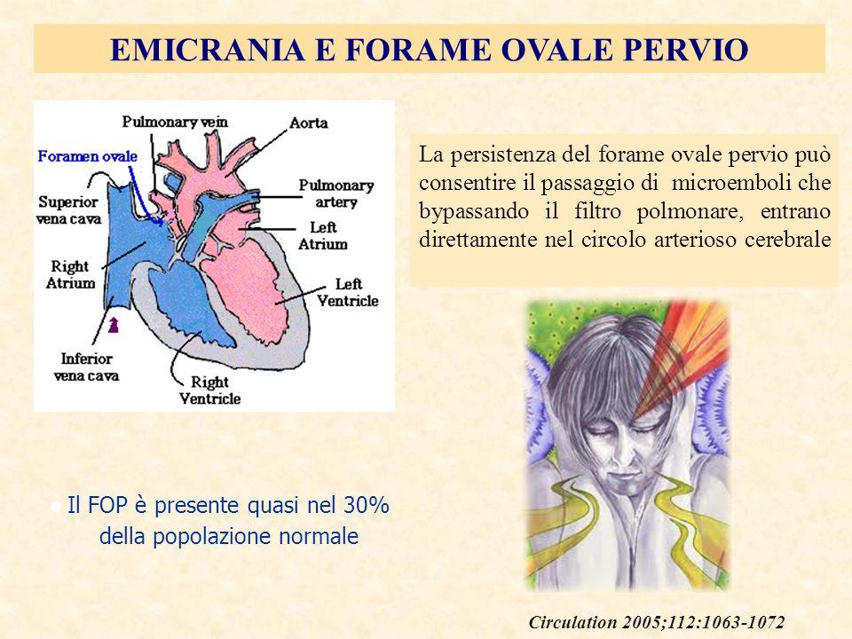 EMICRANIA E FORAME OVALE PERVIO La persistenza del forame ovale pervio può consentire il passaggio di microemboli che bypassando il filtro polmonare,
