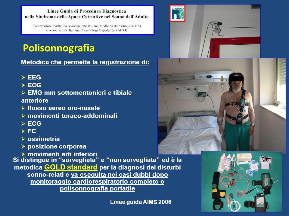 Polisonnografia Si distingue in sorvegliata e non sorvegliata ed è la metodica GOLD standard per la diagnosi dei disturbi sonno-relati e va eseguita n