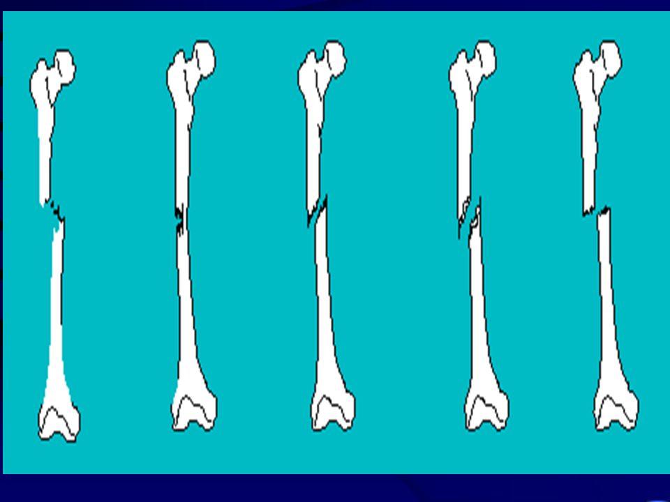 Le fratture Rottura di un osso causata da una forza tale che supera la resistenza dellosso stesso Frattura composta, senza spostamento dei monconi Fra