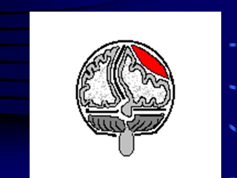 Traumi cranici Nelle forme gravi il traumatizzato cranico presenta i seguenti sintomi: sonnolenza, disorientamento sangue che fuoriesce dal naso, dall