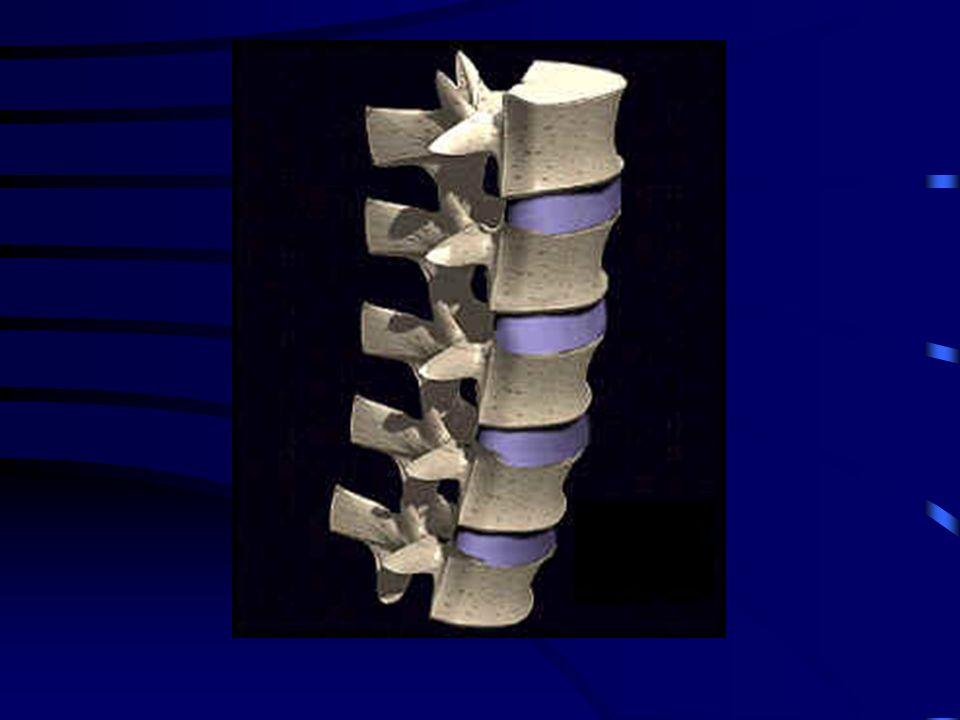 Le lesioni della colonna vertebrale Una lesione della colonna vertebrale può coinvolgere solo la struttura ossea oppure può interessare il midollo spi