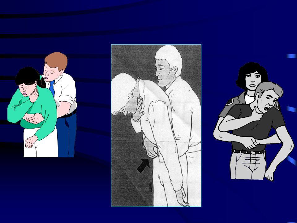 Se la vittima smette di respirare o tossire: se è in piedi o seduta chiamare o far chiamare il 118 dare colpi sulla schiena e compressioni addominali: