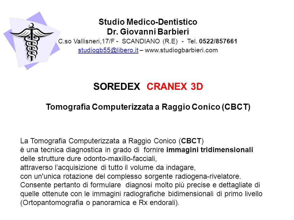 La Tomografia Computerizzata a Raggio Conico (CBCT) è una tecnica diagnostica in grado di fornire immagini tridimensionali delle strutture dure odonto-maxillo-facciali, attraverso lacquisizione di tutto il volume da indagare, con un unica rotazione del complesso sorgente radiogena-rivelatore.