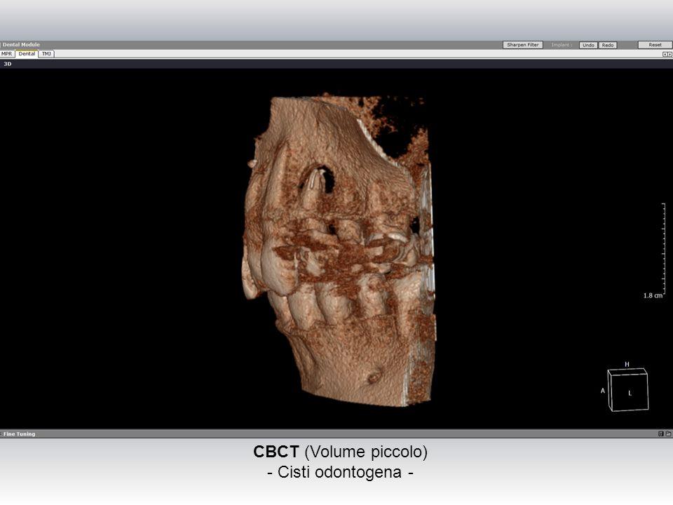 CBCT (Volume piccolo) - Cisti odontogena -