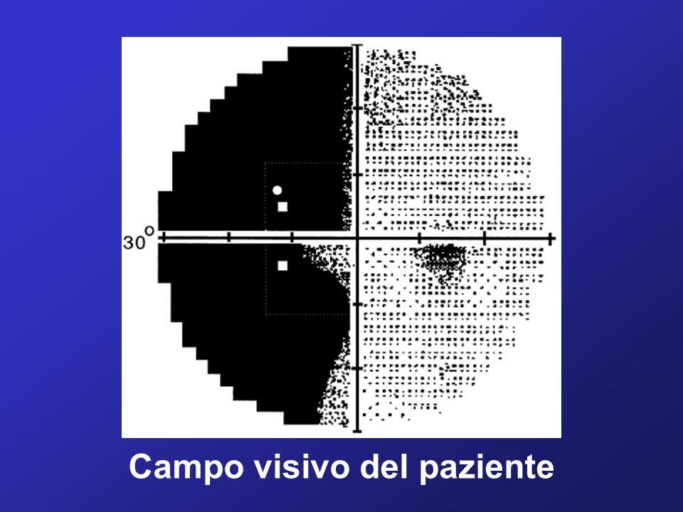 Campo visivo del paziente