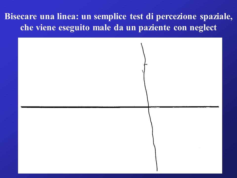 Bisecare una linea: un semplice test di percezione spaziale, che viene eseguito male da un paziente con neglect