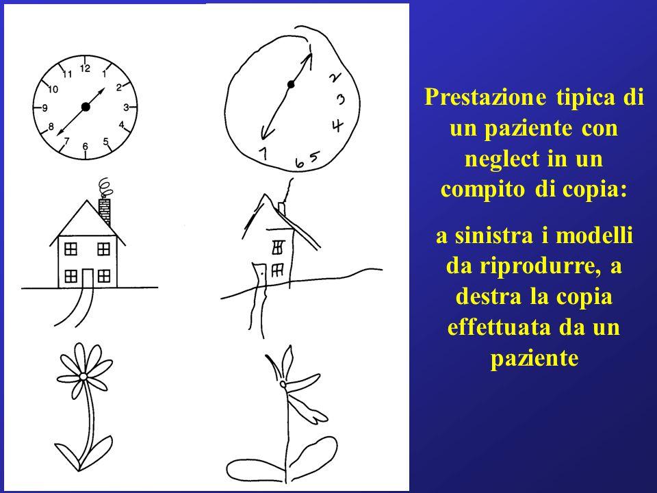 Prestazione tipica di un paziente con neglect in un compito di copia: a sinistra i modelli da riprodurre, a destra la copia effettuata da un paziente