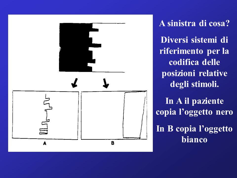 A sinistra di cosa? Diversi sistemi di riferimento per la codifica delle posizioni relative degli stimoli. In A il paziente copia loggetto nero In B c