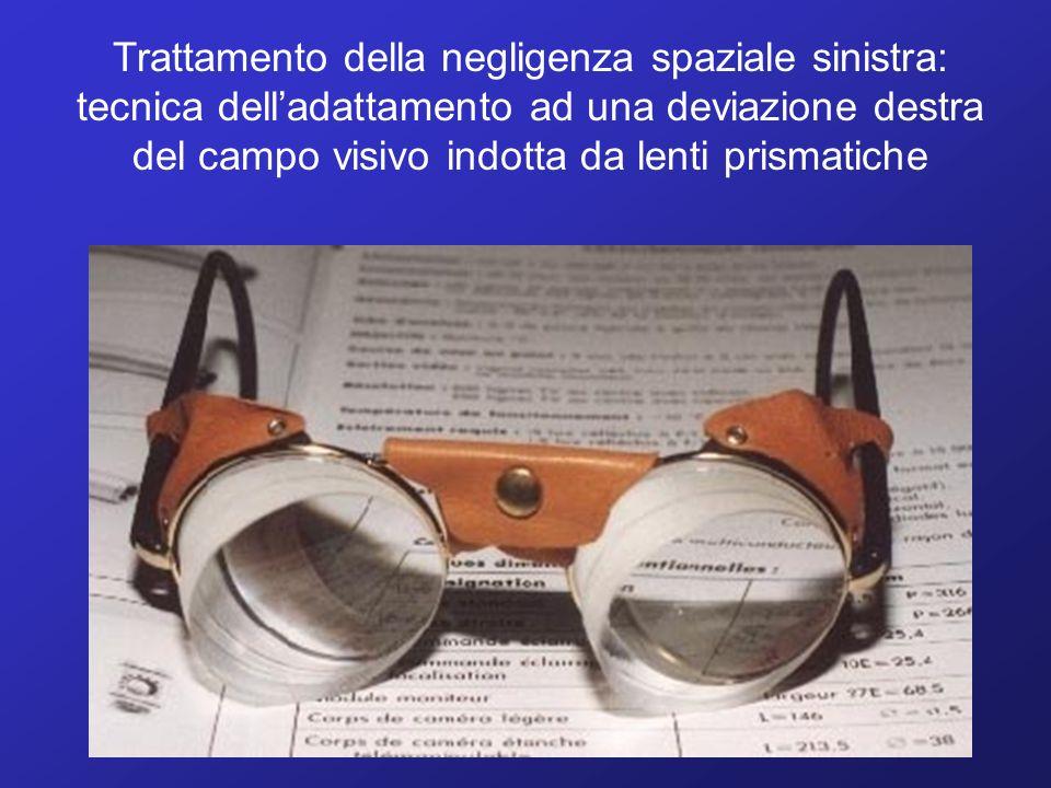 Trattamento della negligenza spaziale sinistra: tecnica delladattamento ad una deviazione destra del campo visivo indotta da lenti prismatiche