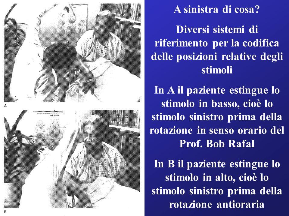 A sinistra di cosa? Diversi sistemi di riferimento per la codifica delle posizioni relative degli stimoli In A il paziente estingue lo stimolo in bass