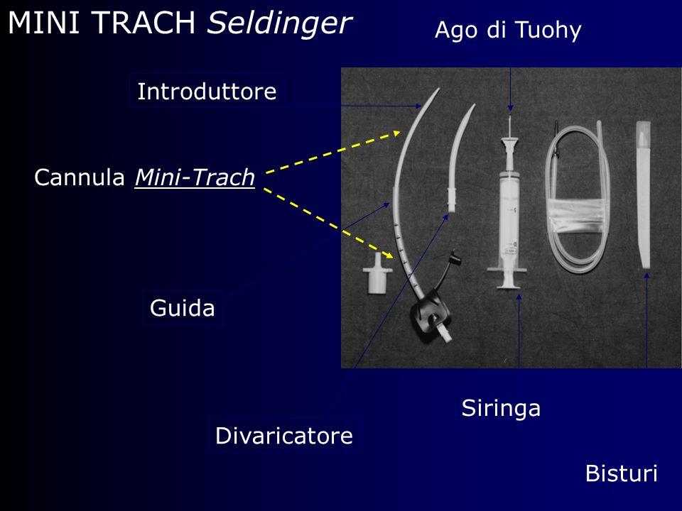 MINI TRACH Seldinger Introduttore Cannula Mini-Trach Siringa Ago di Tuohy Bisturi Guida Divaricatore