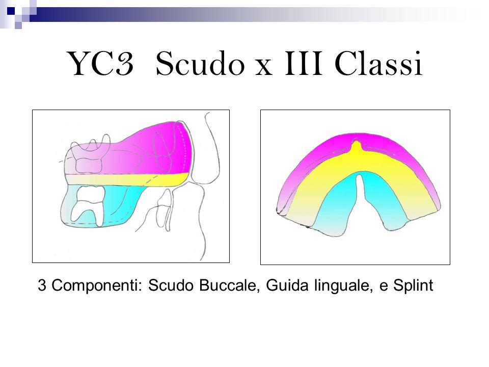 Vengono ristabiliti larmonia e il bilanciamento Lo scudo YC3 neutralizza la pressione del labbro superiore, eliminando le limitazioni alla crescita del mascellare YC3 - Scudo Buccale