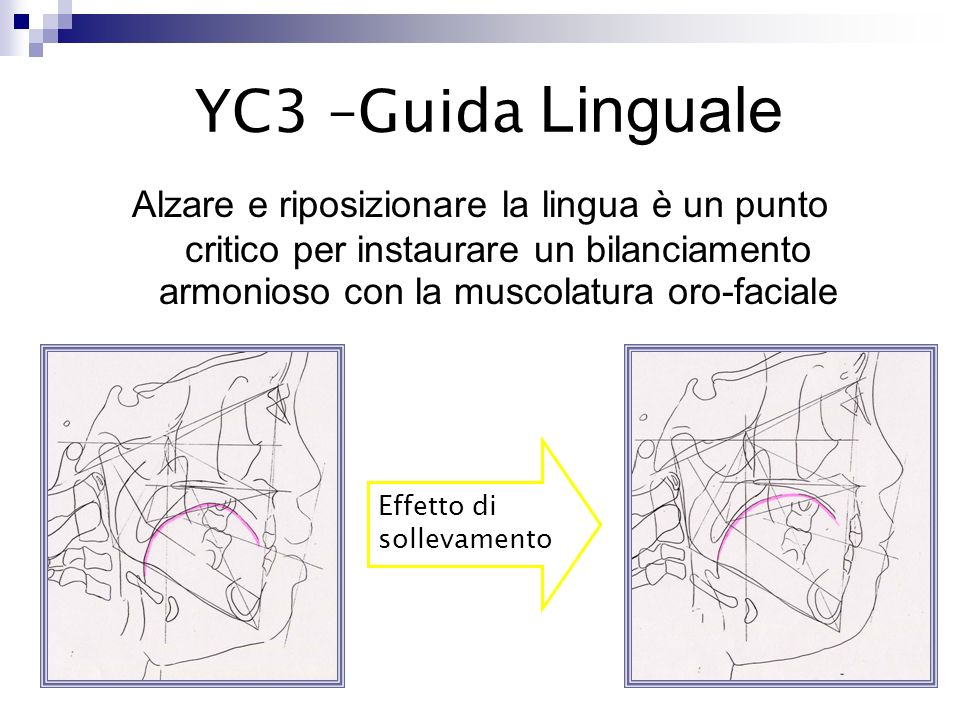 La guida linguale consente ai muscoli del mento di controllare e correggere la posizione e langolazione degli incisivi inferiori senza il contrasto della lingua Effetto di sollevamento YC3 – Guida linguale