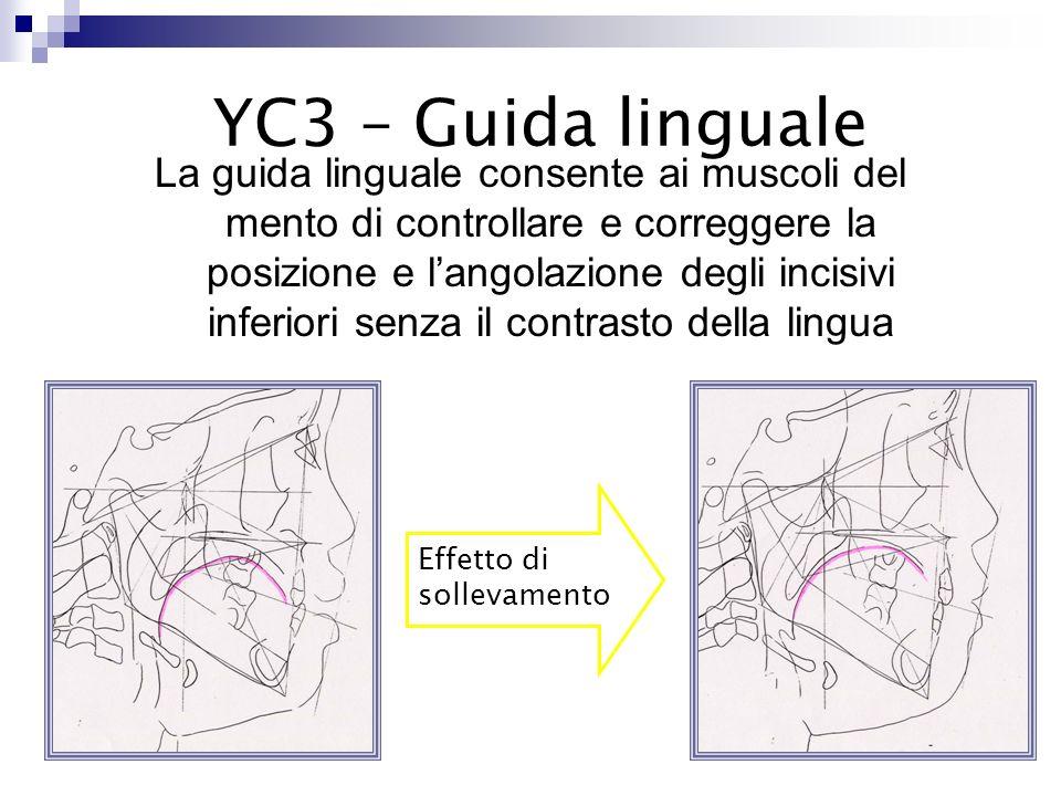 Disocclude il morso in modo da consentire il riposizionamento del dente YC 3 - Splint