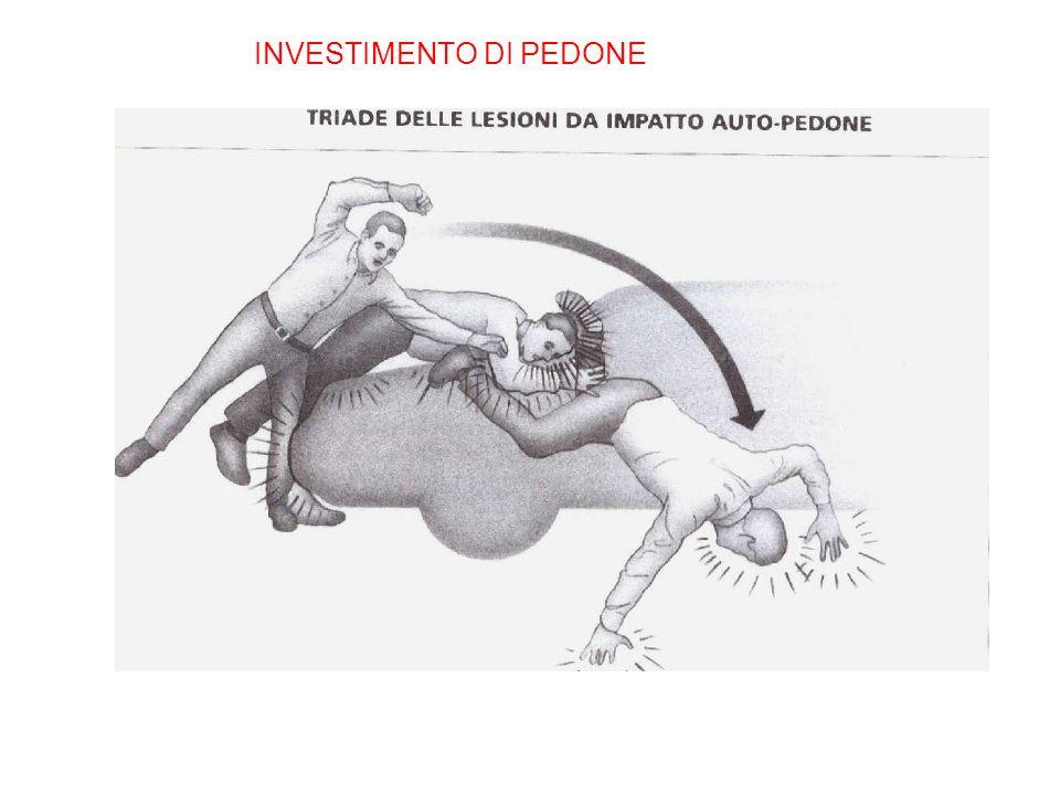INVESTIMENTO DI PEDONE