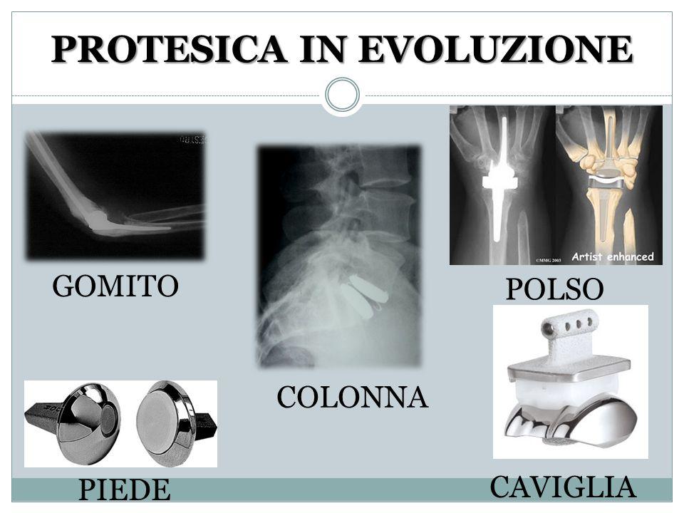PROTESICA IN EVOLUZIONE GOMITO POLSO CAVIGLIA PIEDE COLONNA