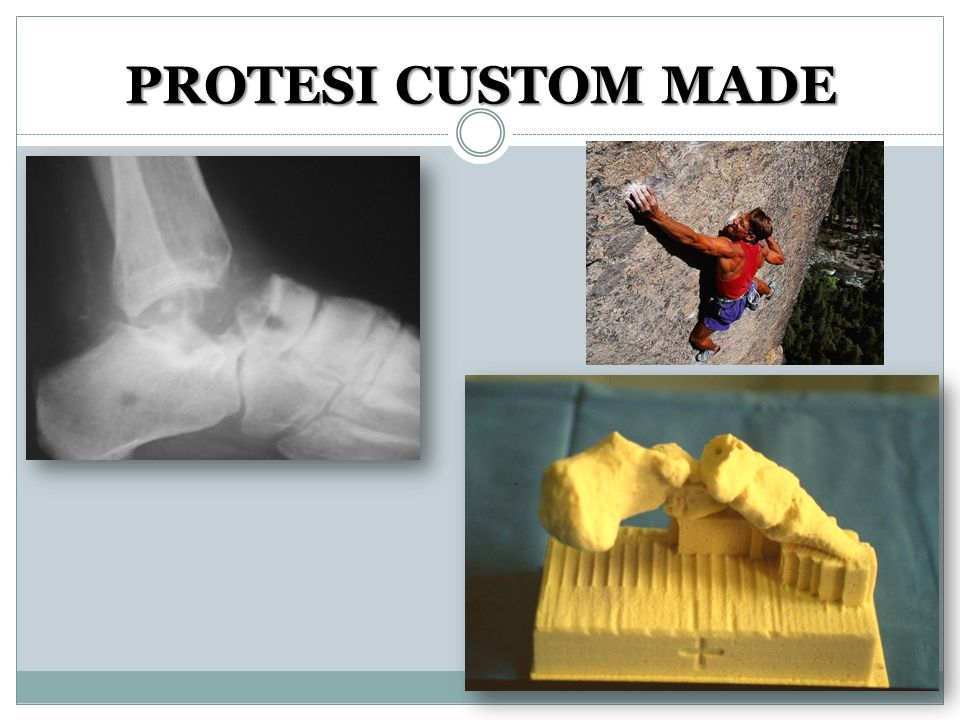 PROTESI CUSTOM MADE