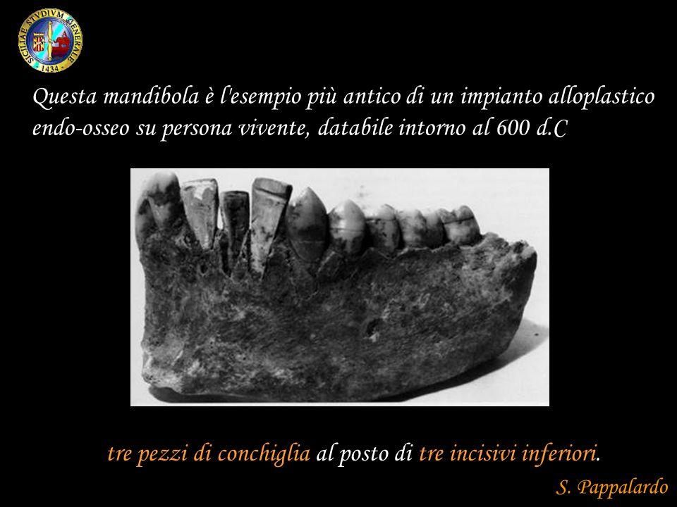tre pezzi di conchiglia al posto di tre incisivi inferiori. Questa mandibola è l'esempio più antico di un impianto alloplastico endo-osseo su persona